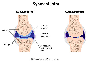Synovialgelenk normal und Arthritis.