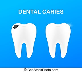 teeth., entwicklung, zahnmedizin, gesunde, illustration., concept., vektor, caries., buehne