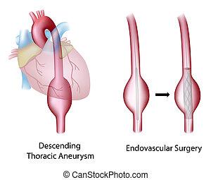 Thorakisches Aortenaneurysma, Operation