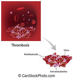 Thrombose, Eps 10.