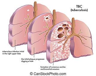 Tuberkulose.