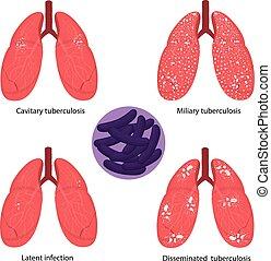 tuberkulose, tuberculosis., mycobacterium