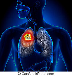 tumor, lunge, -, detail, krebs