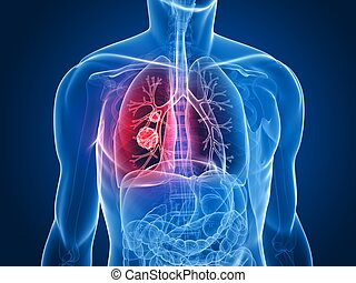 tumor, lunge