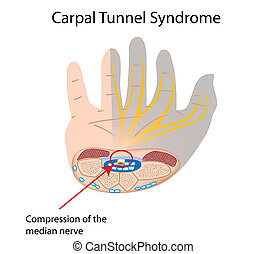 tunnel, syndrom, carpal, eps10