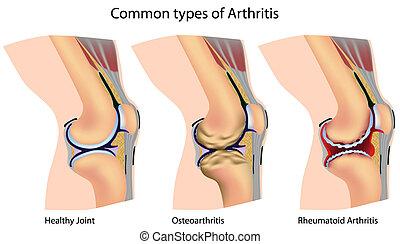 Typische Arthritis.