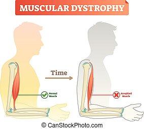 Vector Illustration über Muskeldystrophie. Verglichen mit normalen Muskeln und Muskeln. Medizinisches Programm, wie die Zeit die Gesundheit - gesund und schwach Menschen.