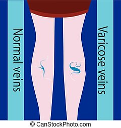 Vektor-Venkosevene und normale Vene. Schlitze und schöne weibliche Beine. Varicosevene.