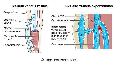 vene, thrombosis, tief