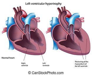 ventrikulär, hypertrophie, eps8, links