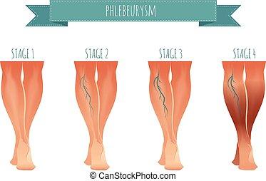 verarbeitung, krankheiten, varicose, infographic, phlebology, abbildung, vektor, veins., vene, buehne