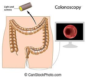 verfahren, eps8, colonoscopy