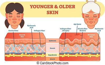vergleich, jünger, älter, abbildung, diagramm, vektor, haut, scheme.