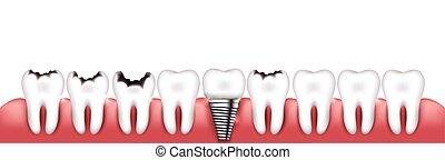 Verschiedene Zähne