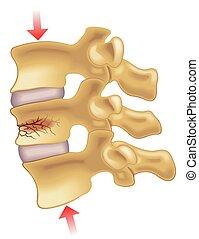 vertebral, knochenbrüche, kompression