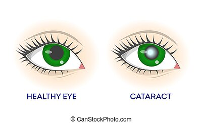 vision, gesunde, auge, cataract., netzhaut, krankheit, probleme