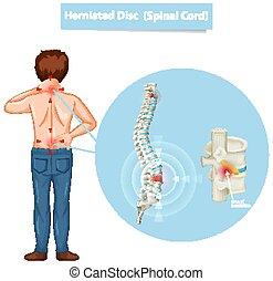 vorgestanden abnormale körperöffnung, diagramm, ausstellung, scheibe