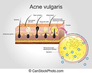vulgaris, akne
