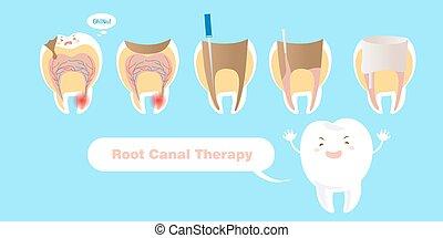 Zahn mit Wurzelkanaltherapie.