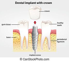 Zahnimplantat mit Krone.