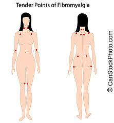 Zehn Punkte Fibromyalgie, Eps8