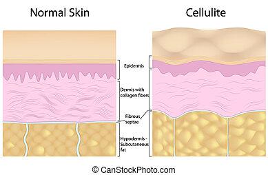 Zellulitis gegen glatte Haut