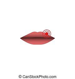 ziel, zeigen, hintergrund., abstrakt, abbildung, hsv-1, freigestellt, virus, quelle, lippen, infektion, closeup, simplex, weibliche , schließen, weißes, herpes